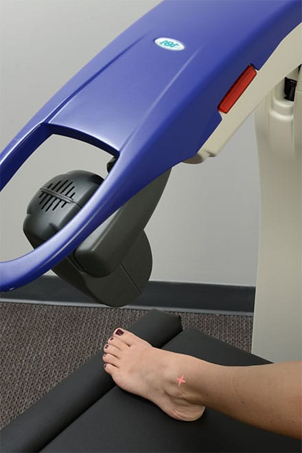 Laser Therapy Elmhurst IL Foot Treatment